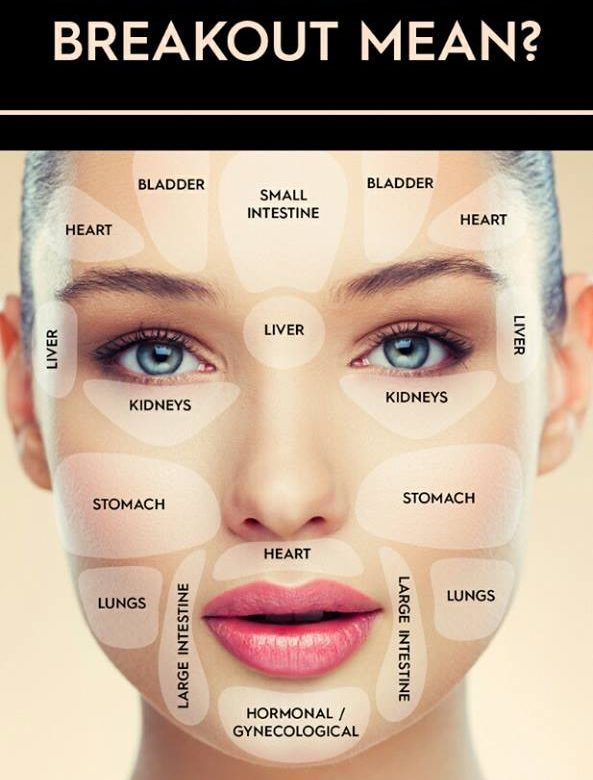 Face Map To Treat Acne And Breakouts Hajash Naturals - Face map for acne